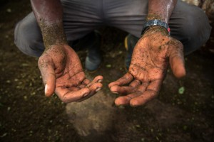 A 'cocalero' shows the blisters on his hands at a local coca makeshift laboratory. Dario (not his real name), now 25, has been working processing the coca leaves into coca paste since he was 14.